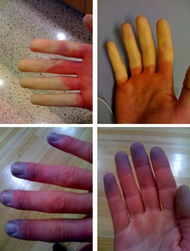 Raynaud's_Syndrome